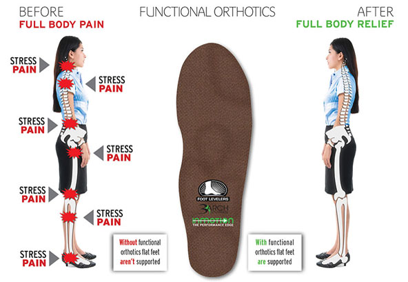 Custom Orthotics Creates a Stable Base for Your Body